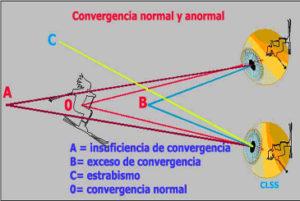 Convergencia normal y anormal