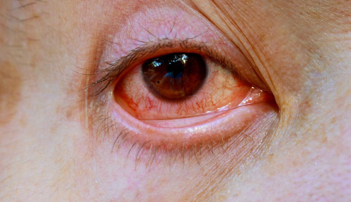 ojos con venas rojas