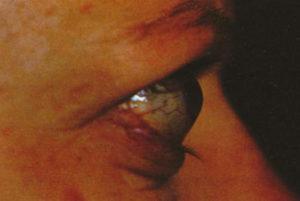 Urgencias oftalmológicas graves