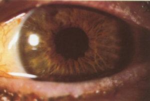 Urgencias oftalmológicas por desgarros del esfínter pupilar