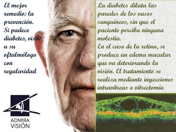 14 de Novembre: Día Mundial de la Diabetis. Campanya de prevenció de la retinopatia diabètica