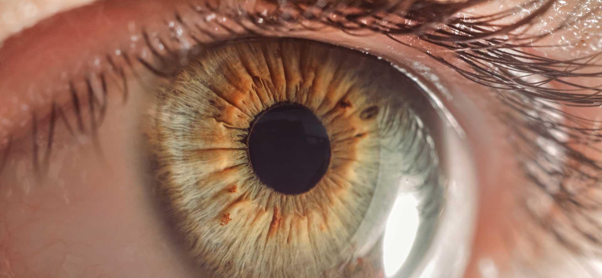 Hipertensión maligna y afectación oftalmológica