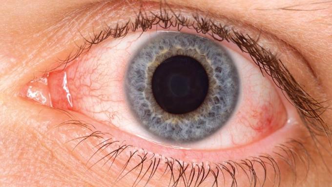 test de alergia ocular