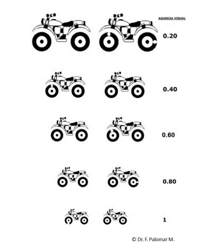 test medición agudeza visual para niños