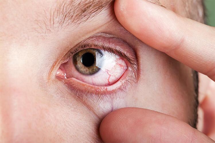 És normal tenir venes vermelles als ulls?