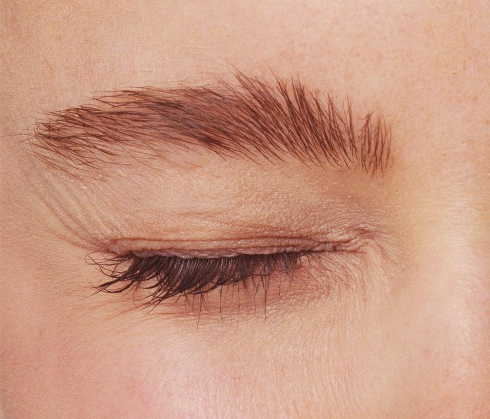 Tics o temblores en los ojos